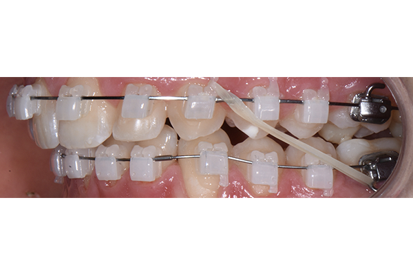 Successful Treatment Outcomes Using 3M™ Clarity™ Ultra Self-Ligating Brackets Bonded with a Digital Flash-Free Bonding Technique